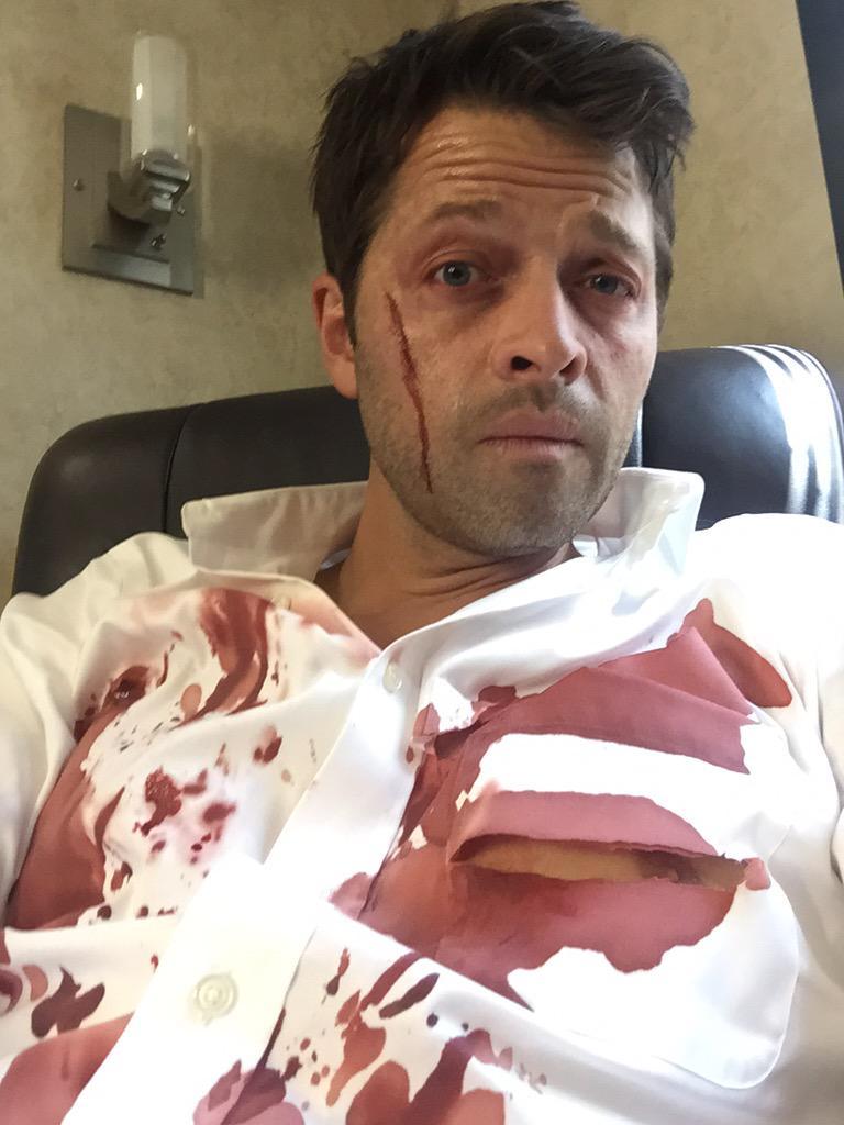 看起來 Castiel 又滿身傷了,破掉的衣服還蠻性感的啦~