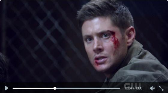 左邊那個頭髮露一角出來的就是身體不舒服的兔子眼 Castiel